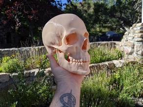 Human Skull (Medical Scan)