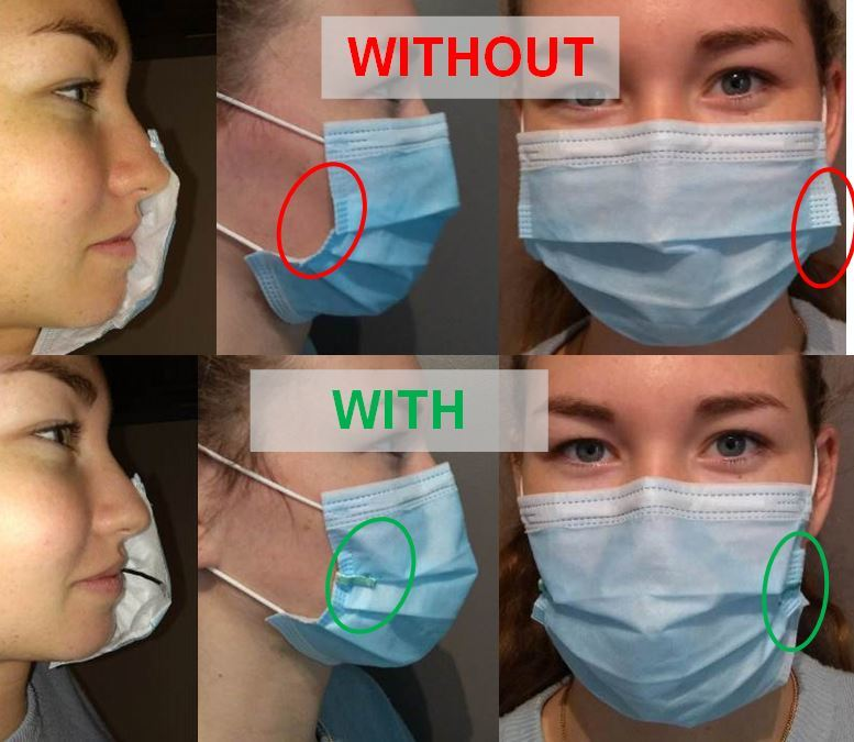 Surgical mask retractor / Ecarteur de masque chirurgical