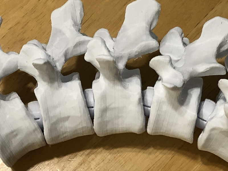 Articulating Lumbar Vertebrae