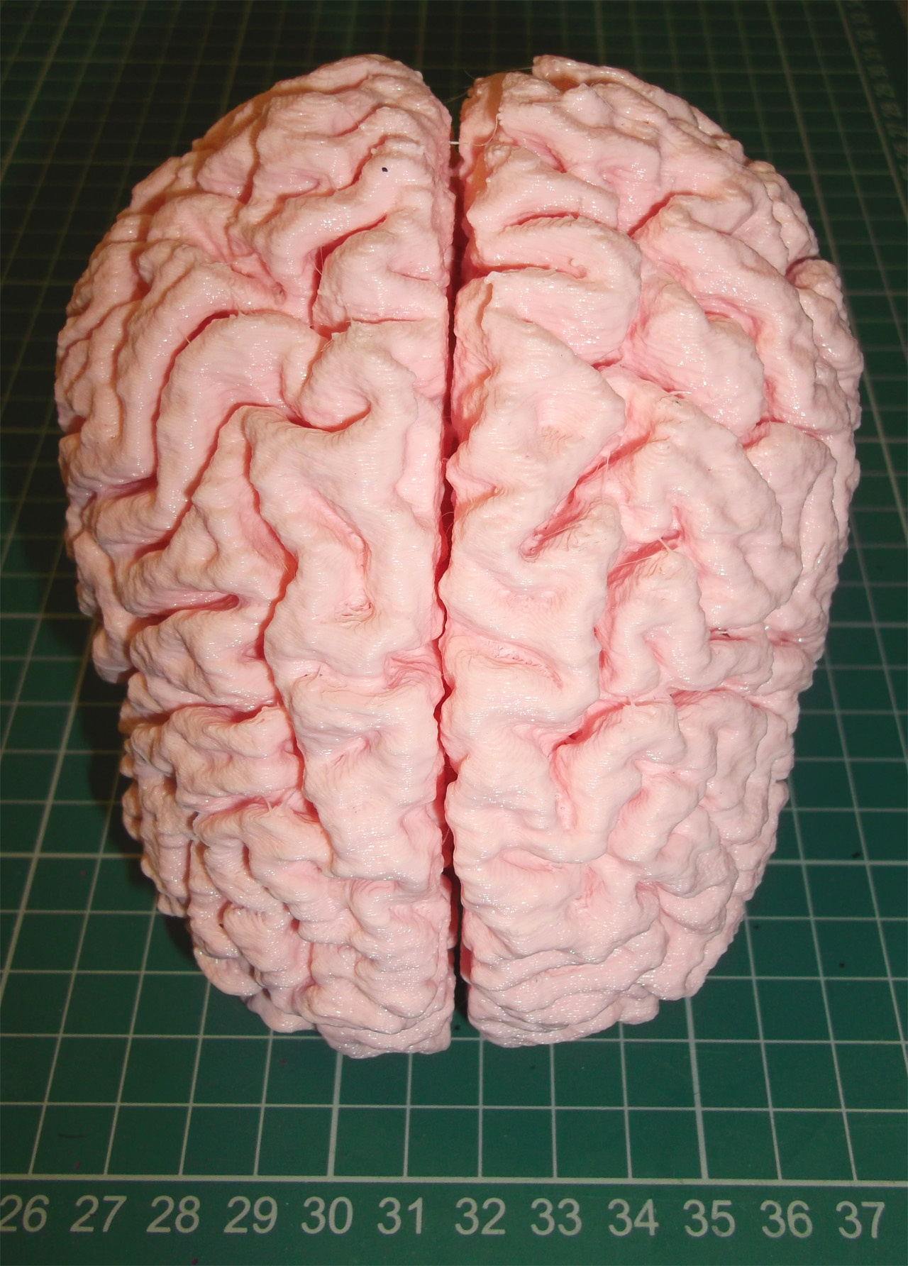 Image of human brain thingiverse for 15 metrotech center 7th floor brooklyn ny 11201