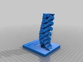 Elahd Bar-Shai's Lumbar Spine