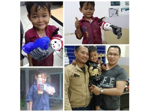 CRE-005 Hand Prosthesis for Children - Huced Despro ITS