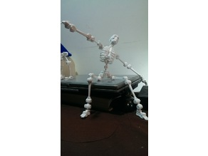 robot about the bone collector