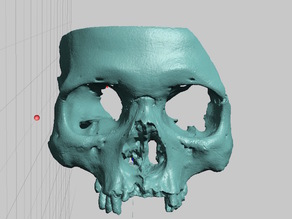 Partial Human Skull, African Ancestry, Facial Region Scan