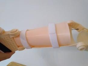 Flexible Arm Filler Insert for Unlimbited Alfie Arm