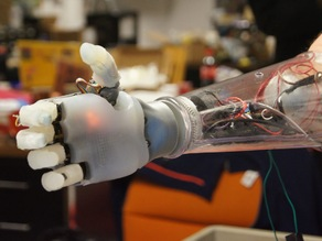 Compliant Prosthetic Hand with SemiFlex