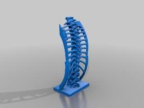CT Spine