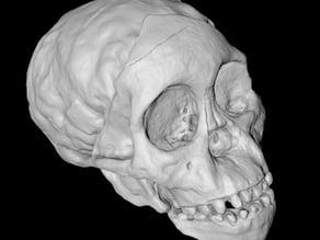 Taung Child Skull