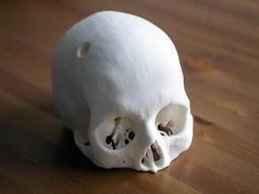 Cerebrix Human Skull post surgery