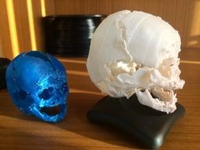 Newborn skull