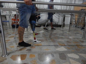 3D Prosthetic foot