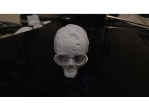 Scanned Skull