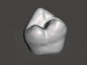 Human Molar Tooth
