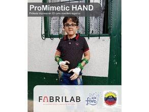Promimetic Hand G1