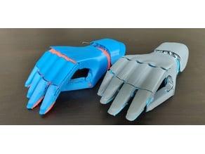 hand prosthesis SDC