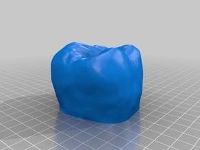 Molar 16 (Human teeth)