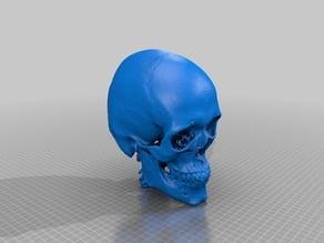 Anonymous CT Skull 3