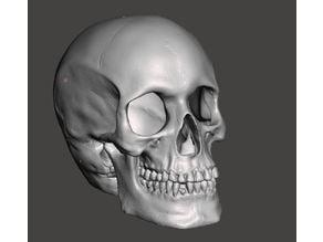 Hollow Skull w/ Shattered Occipital Bone