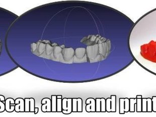 3D modeling and 3D printing for dental