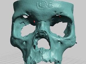 Partial Human Skull, Asian Ancestry, Facial Region Scan