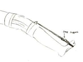 Plantar Fasciitis Pain Reduction Apparatus