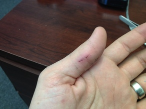 3D Printer Battle Wounds