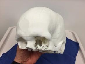 Adult Skull