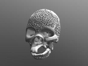 Skull facial malformation Voronoi