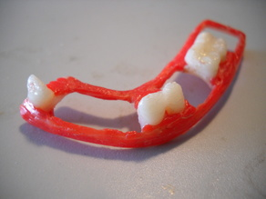 dental partial dentures