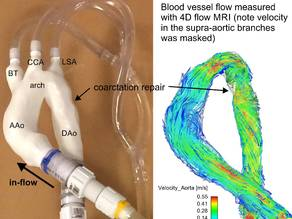 Surgically repaired coarctation of the aorta (flow model)