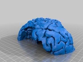 brain mri tumor