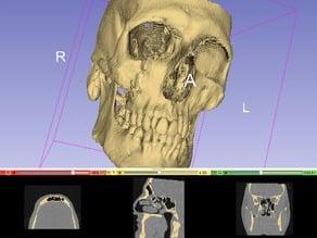 Human Skull (front halve)